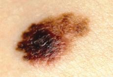 MelanomaPic2